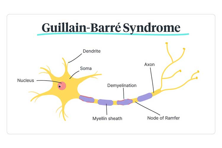 Guillain Barré syndrome diagram