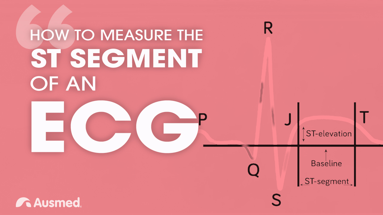 Image for How to Measure the ST Segment of an ECG