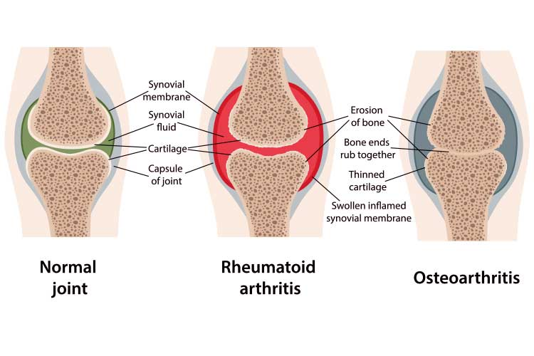 Anatomy comparison of normal, rheumatoid athoritic, and osteoartheritic joints | Image