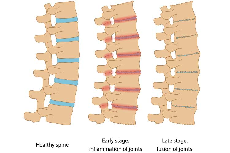 Anatomy comparison of healthy, inflamed, and fused joints | Image