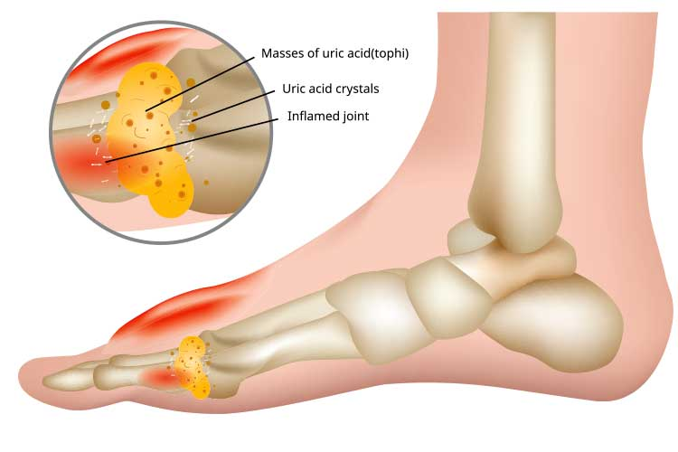 Uric acid build up in joint | Image
