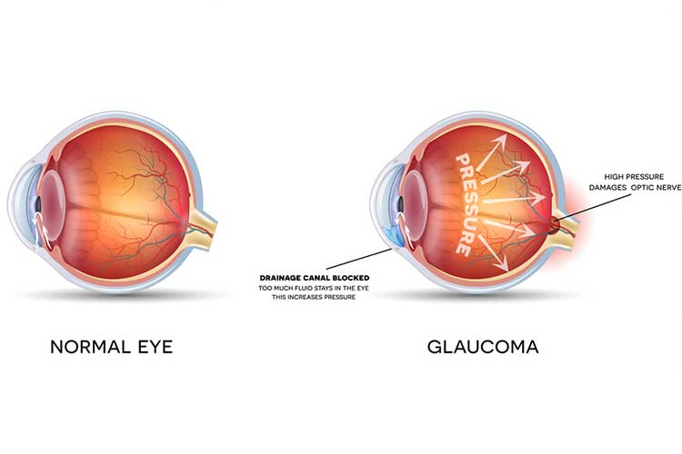 Anatomy comparison of normal eye and glaucoma | Image