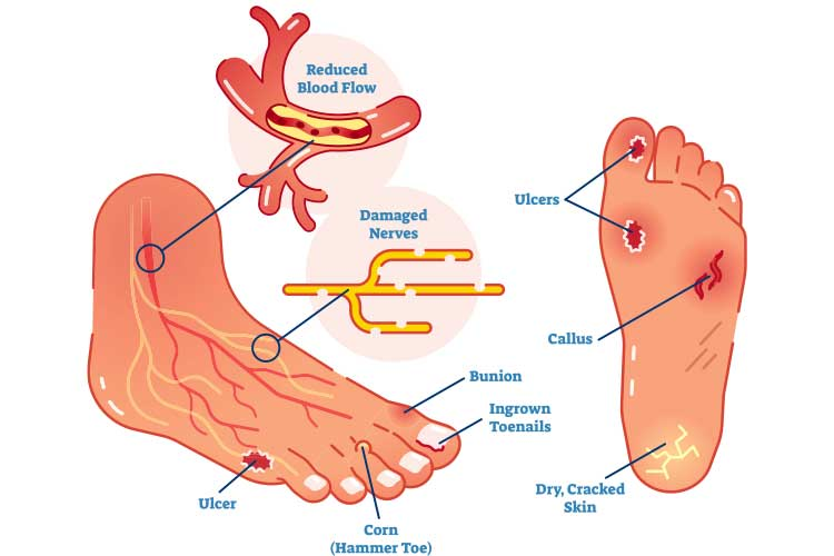 Symptoms of diabetic foot | Image