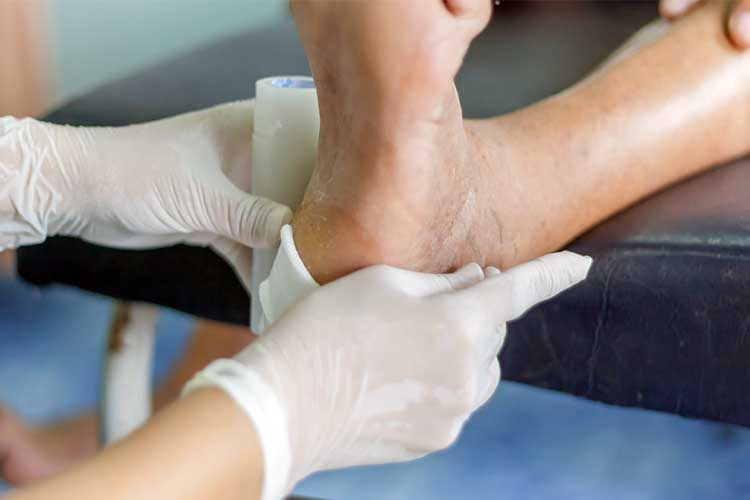 Diabetic foot being treated | Image