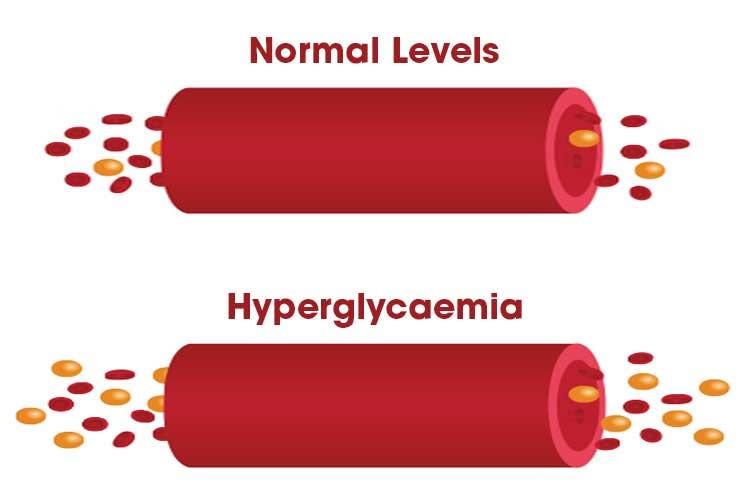 Hyperglycaemia