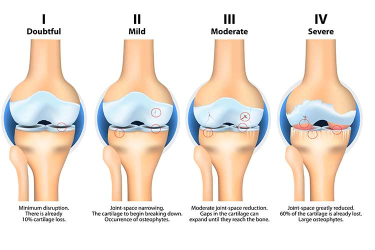 Stages of arthritis in knee