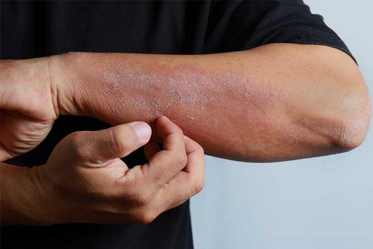 Eczema triggers