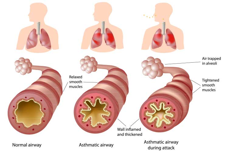 Normal, asthmatic, and asthma attack airways | Image