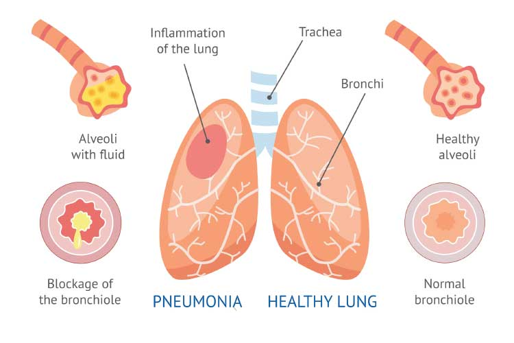breathing pneumonia