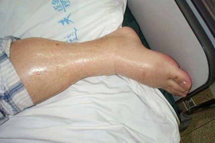 fluid balance leg oedema