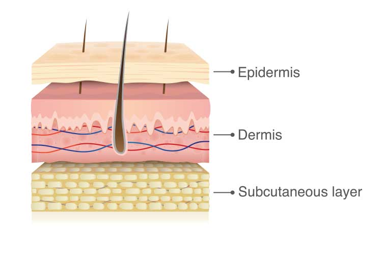 skin tear layers