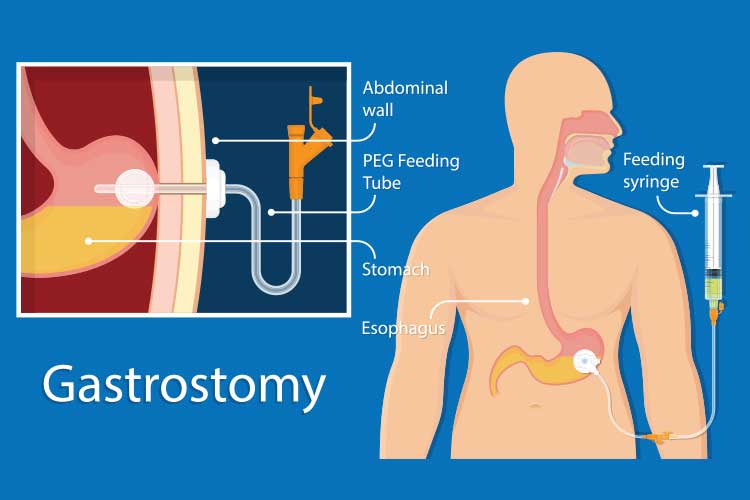 enteral feeding gastronomy diagram