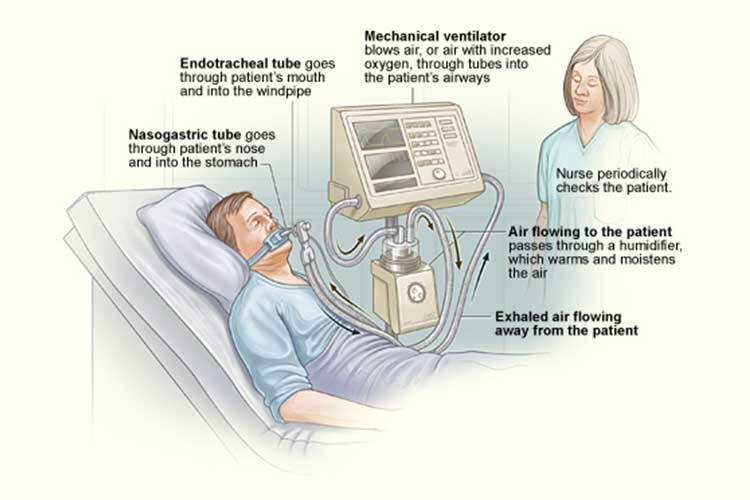 ventilator diagram