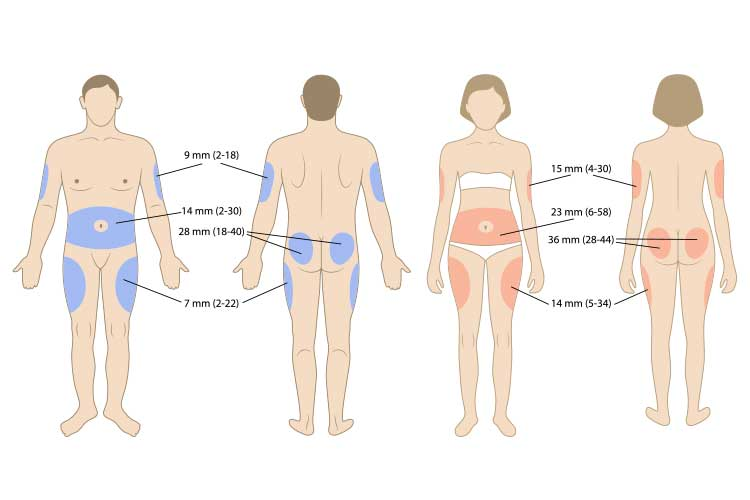 diagram of subcutaneous injection sites