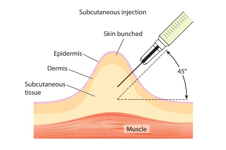 subcutaneous injection syringe insertion diagram