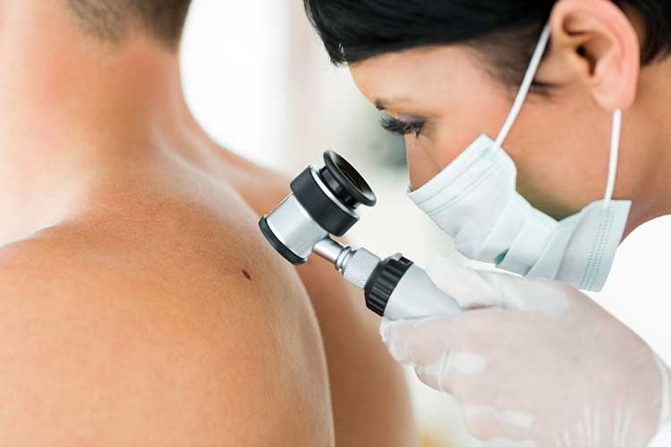 examining for skin cancer