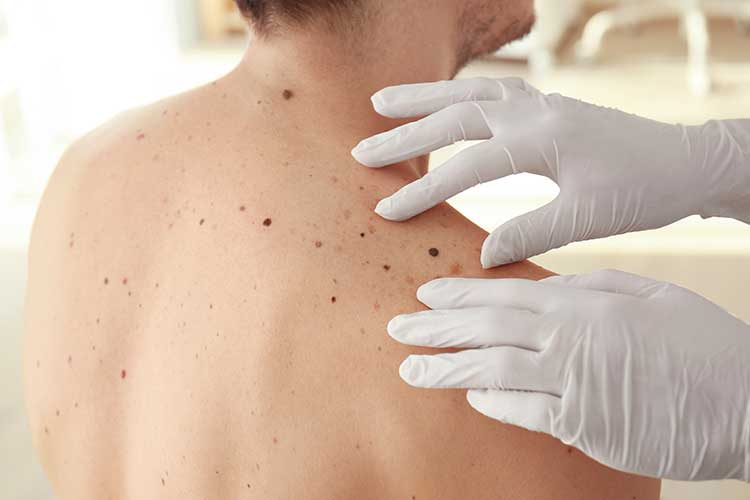 skin check for melanoma