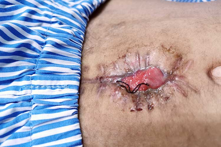 wound dehiscence on abdomen