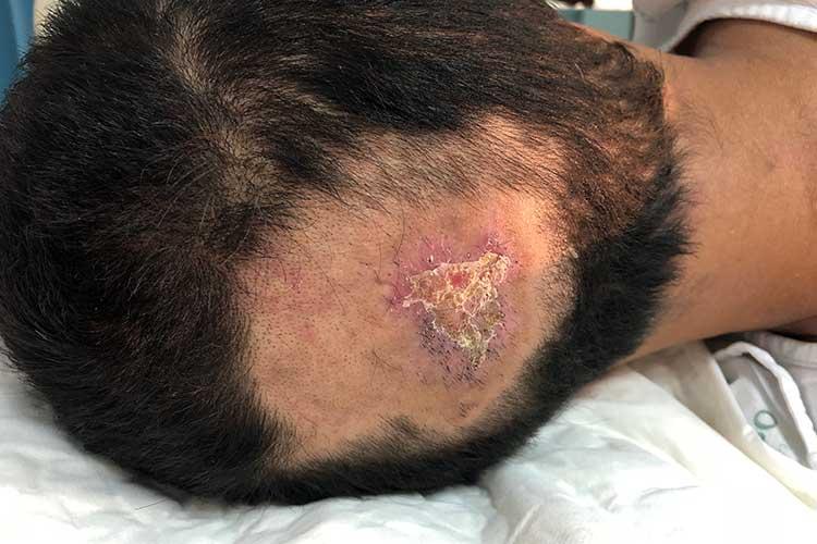 pressure injury on head