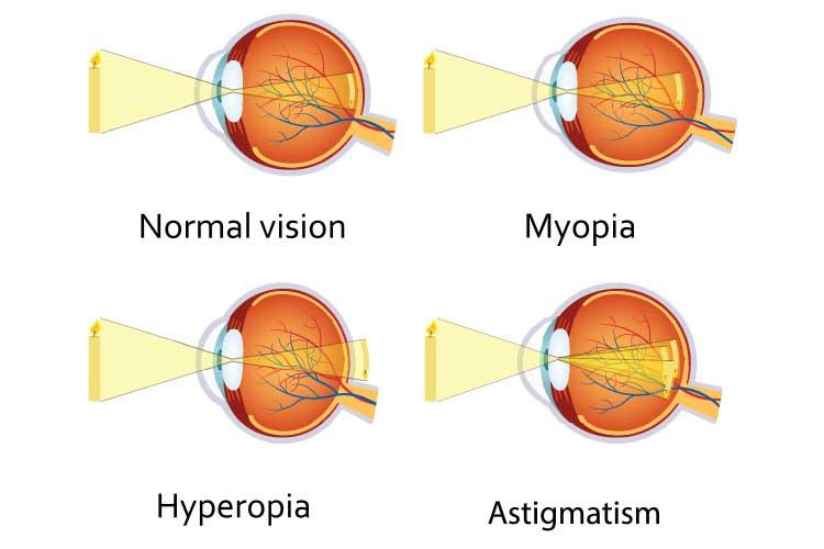 refractive errors diagrams