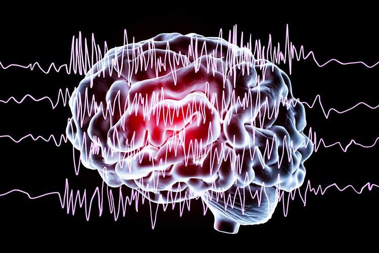 brain experiencing a seizure