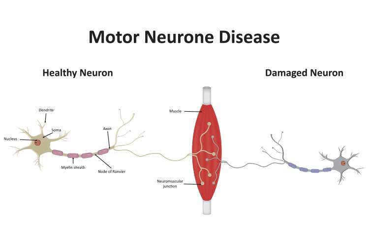 motor neurone disease diagram