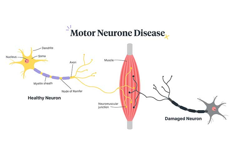 motor neurone disease diagram