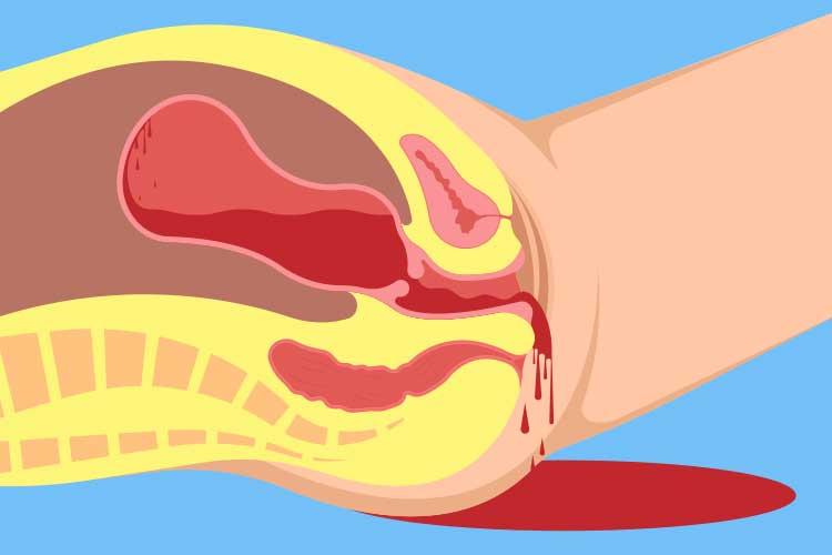 postpartum haemorrhage diagram