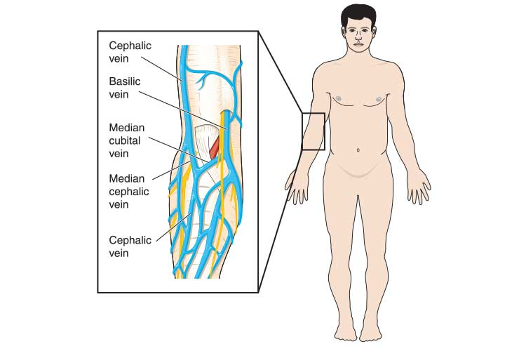 antecubital fossa (ACF) vein cannulation sites diagram