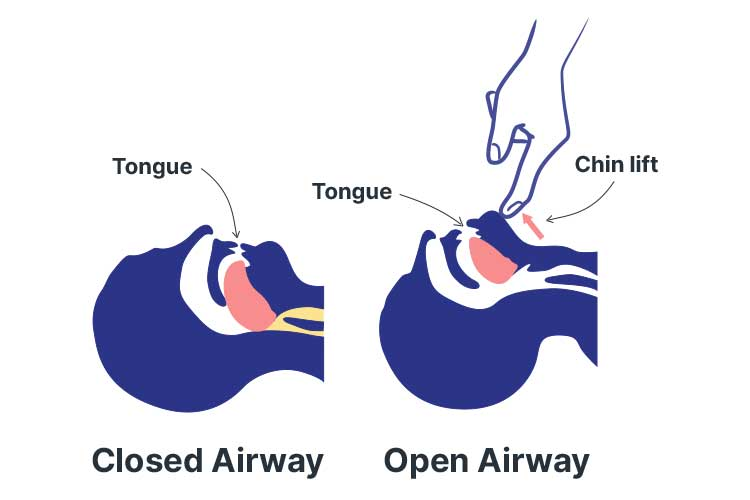 basic life support drsabcd tongue obstructing airflow
