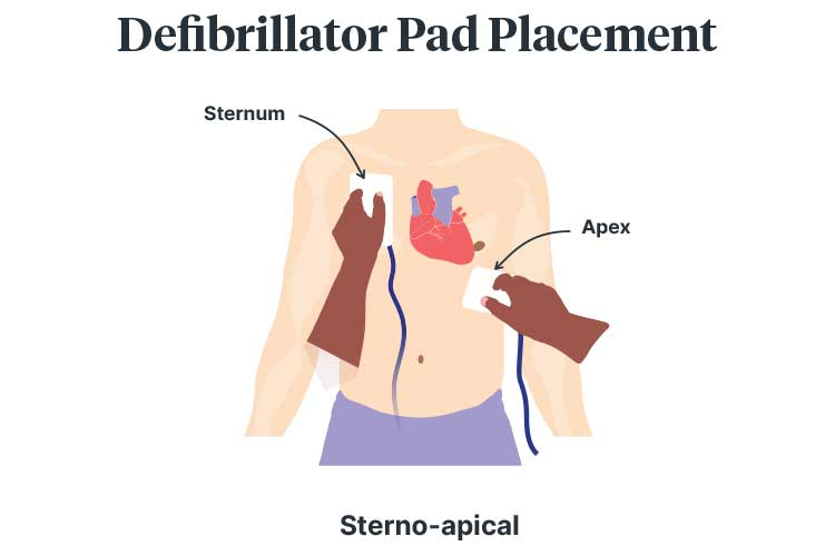 basic life support drsabcd defibrillator placement sterno-apical