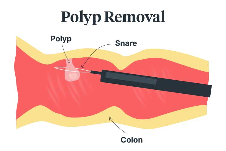 colonoscopy polyp removal