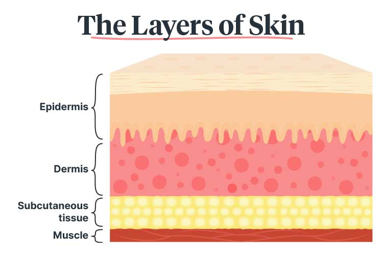 Acute Management of Burn and Scald Injuries skin layers diagram