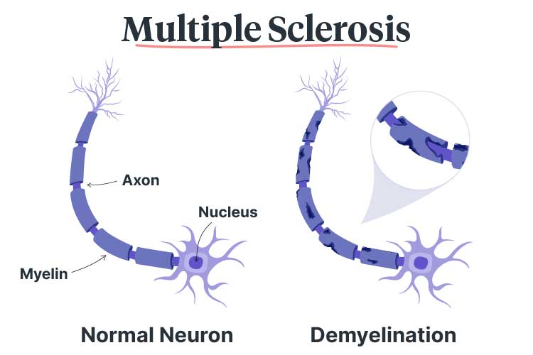 multiple sclerosis demyelination