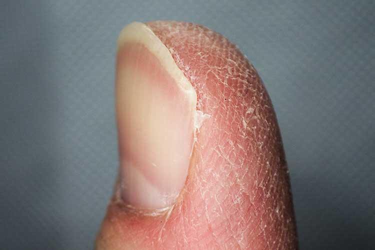 xerosis dry skin finger
