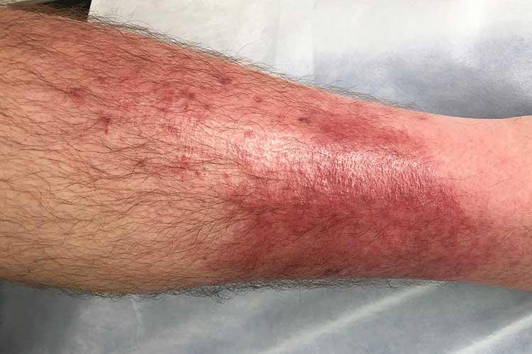 cellulitis lower leg
