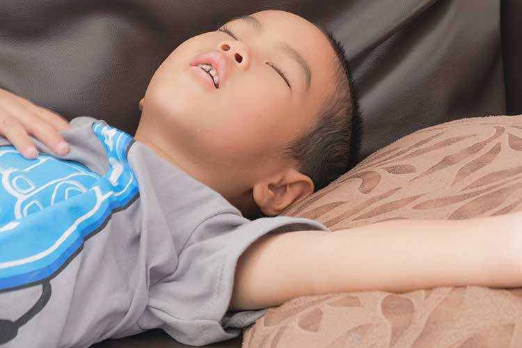 tonsils obstructive sleep apnoea