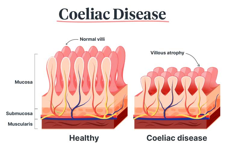 coeliac disease villi
