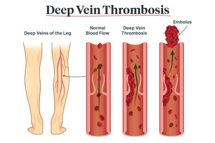 blood clot deep vein thrombosis
