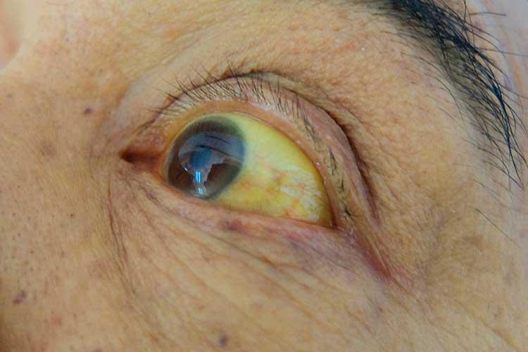 hepatitis b symptoms jaundice