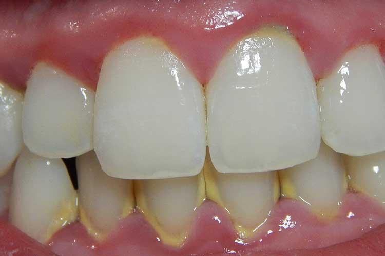 gum disease plaque