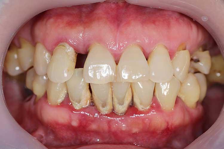 gum disease periodontitis