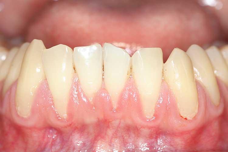 gum disease periodontitis receding gums