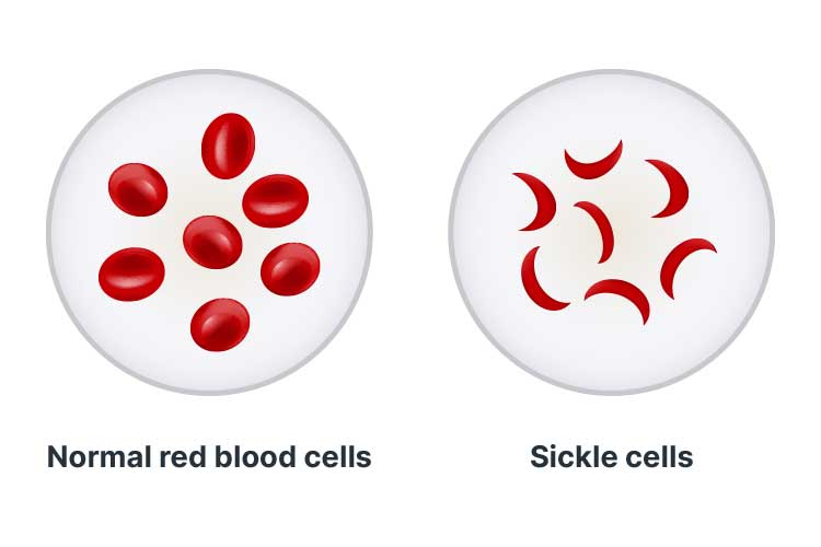 haemoglobin disorders sickle cell disease
