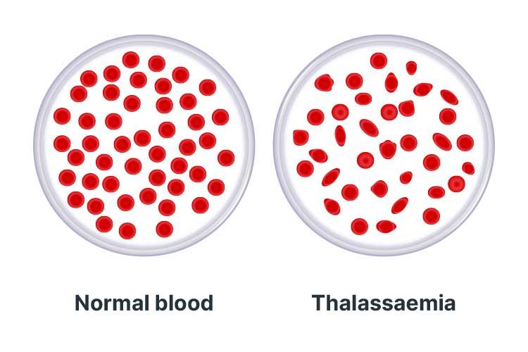 haemoglobin disorders thalassaemias